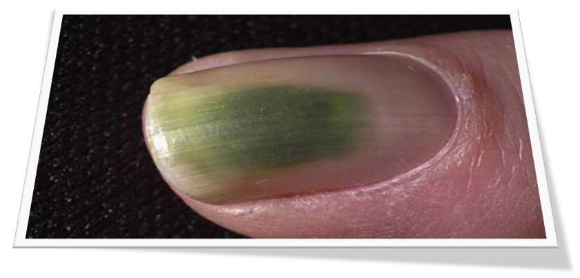 Groene nagel